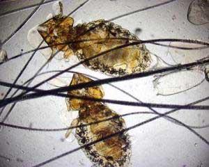кожные паразиты у человека симптомы